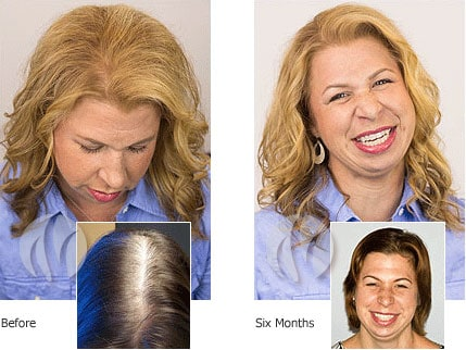 Laser Hair Therapy Female. MEP-90. Minneapolis St Paul MN