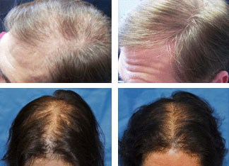 laser hair loss therapy results men women minneapolis mn