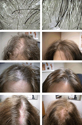 Laser Hair Restoration Therapy Testimonial Photos. Minneapolis MN