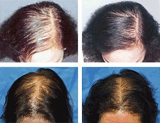 Laser Hair Therapy Results Minneapolis MN