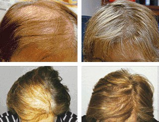Laser hair therapy st paul minnesota