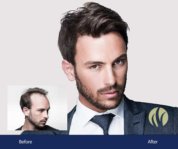 Most Natural Mens Hair Replacement