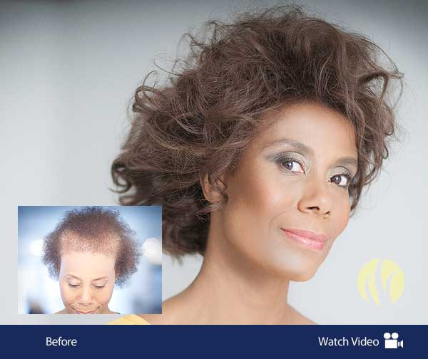 Women's Hair Integrations for Thinning Hair.