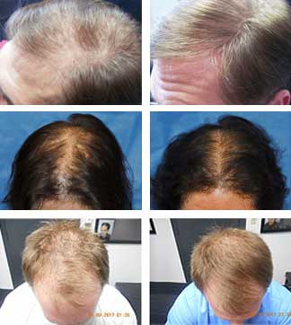 Laser Hair Therapy Results - Bloomington / Minneapolis, MN