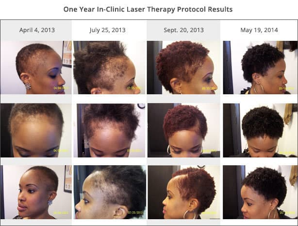 Minneapolis Laser Hair Therapy Treatment Results
