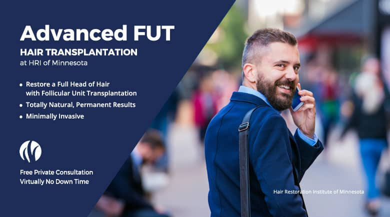 NeoGraft FUE Hair Transplants Minneapolis St Paul Bloomington Minnesota