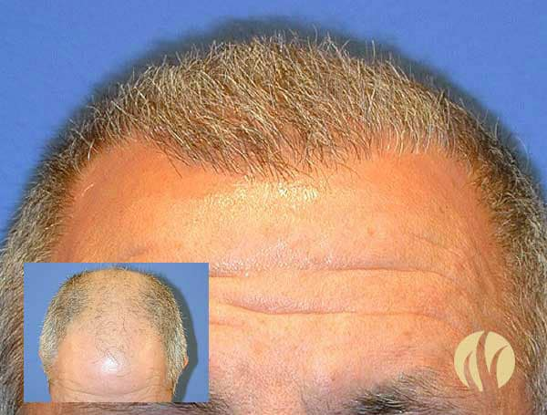 Mens Hair Transplants Minneapolis MN