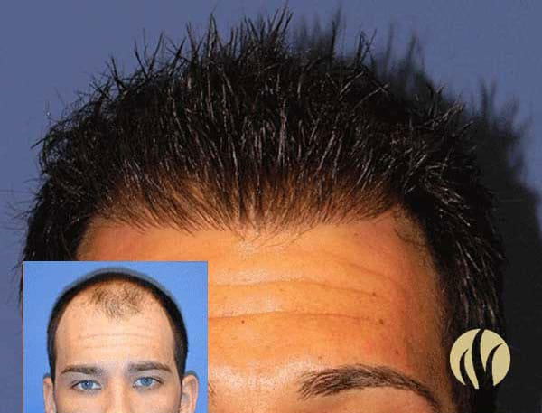 Mens Surgical Hair Transplants Restoration Minneapolis MN