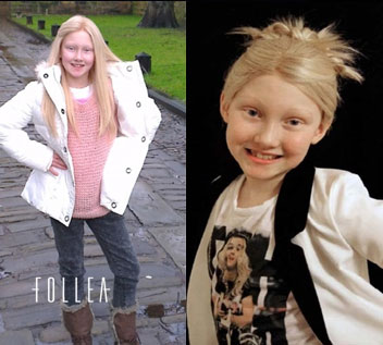 Follea Wigs for Children Minnesota