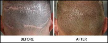 Cover Scars with Scalp Micropigmentation